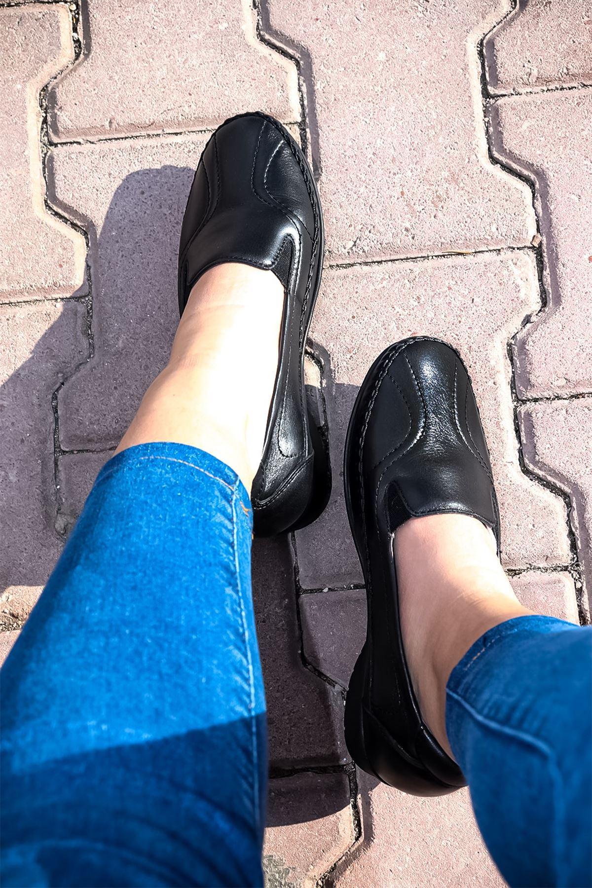 Forelli - 51302 Siyah Ortopedik Kadın Ayakkabısı