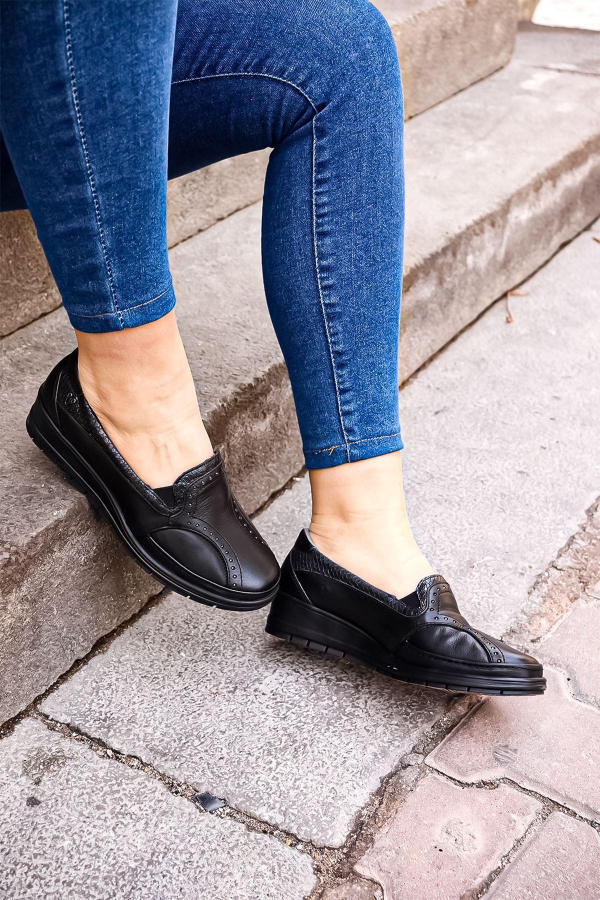 Forelli - 25109 Siyah Ortopedik Kadın Ayakkabısı
